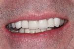 After Anterior Crowns and Veneers at Rehoboth Beach Dental in Rehoboth Beach, DE