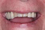 Before porcelian crowns at Rehoboth Beach Dental in Rehoboth Beach, DE