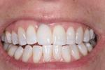 After Implant Crown at Rehoboth Beach Dental in Rehoboth Beach, DE