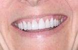 Dental-Veneers-After-Image