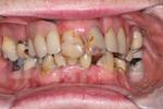 Before a full mouth reconstruction at Rehoboth Beach Dental in Rehoboth Beach, DE