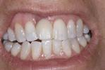 Before implant crown at Rehoboth Beach Dental in Rehoboth Beach, DE
