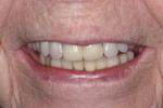 After crowns, new partial denture and reconstruction at Rehoboth Beach Dental in Rehoboth Beach, DE
